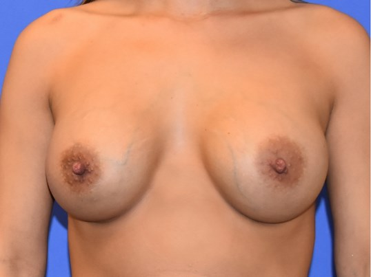 Breast Augmentation Katy After 3 months