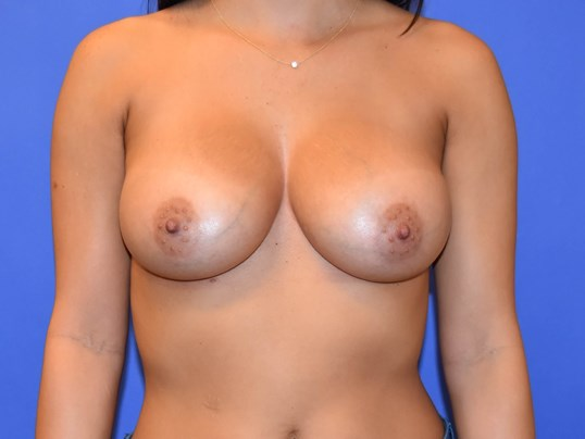 Breast Augmentation - Houston After 5 months