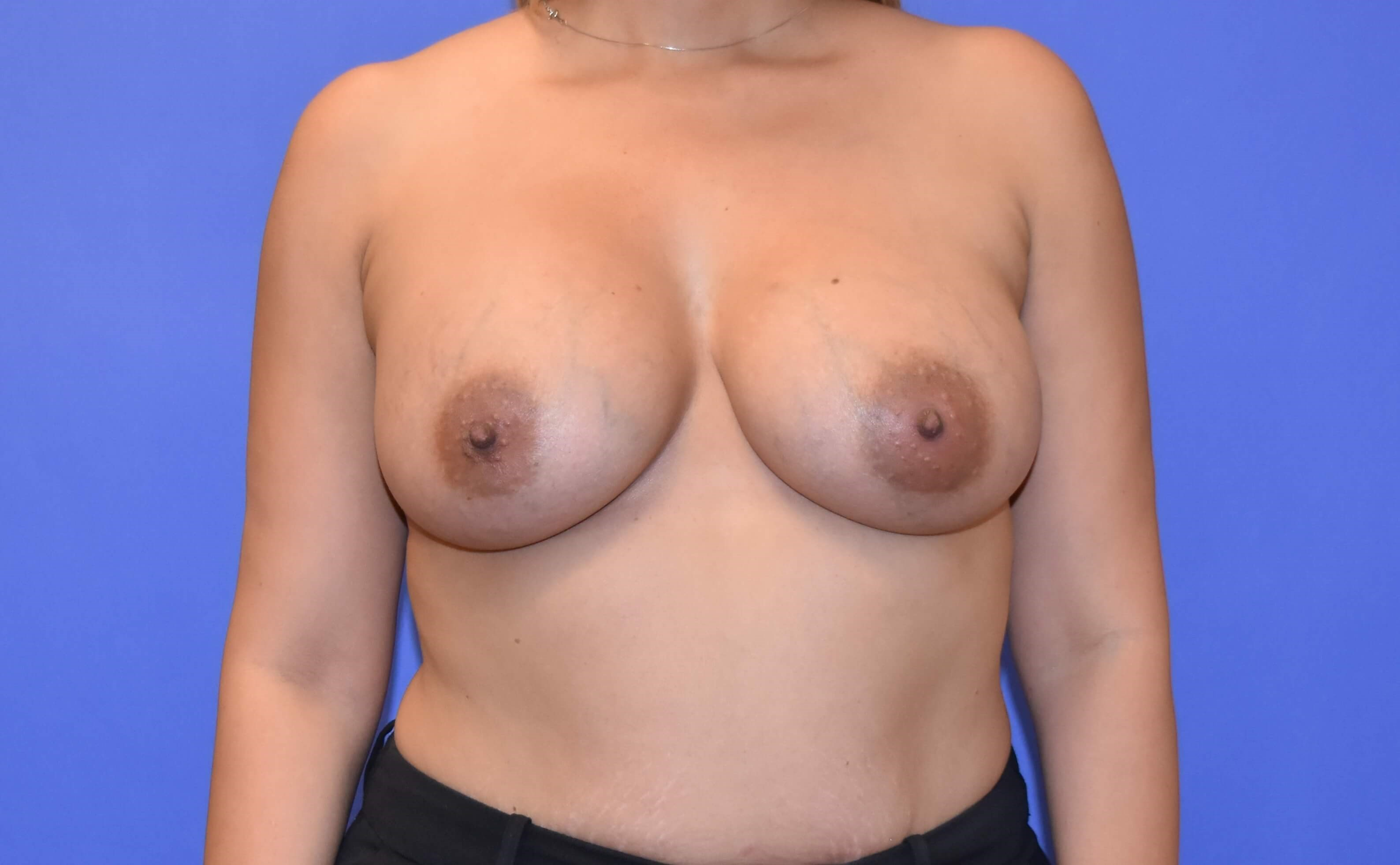 Breast Augmentation Katy After