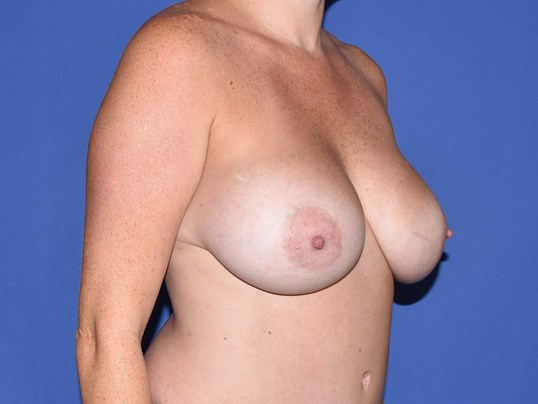 Houston Breast Augmentation After 3 months