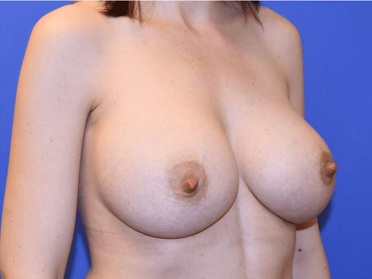 Breast Augmentation Houston After 3 months
