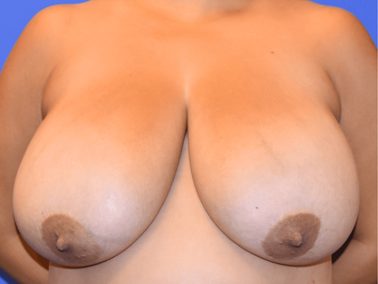 Katy, TX Breast Reduction Before