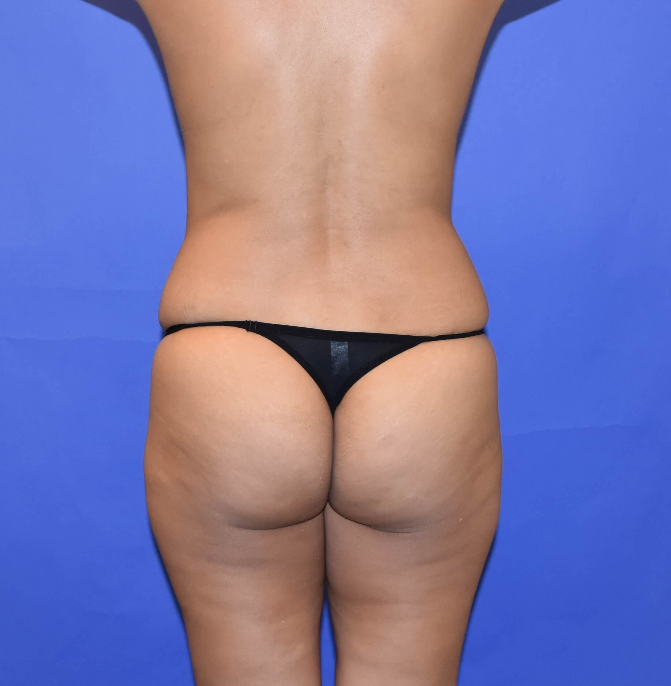 Brazilian Butt Lift Houston Before