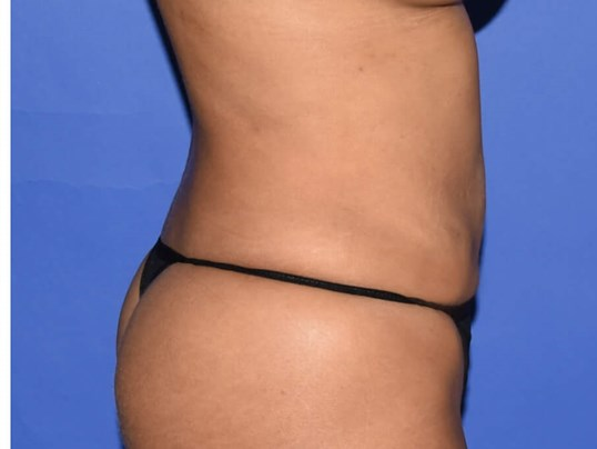 Liposuction Houston, TX After