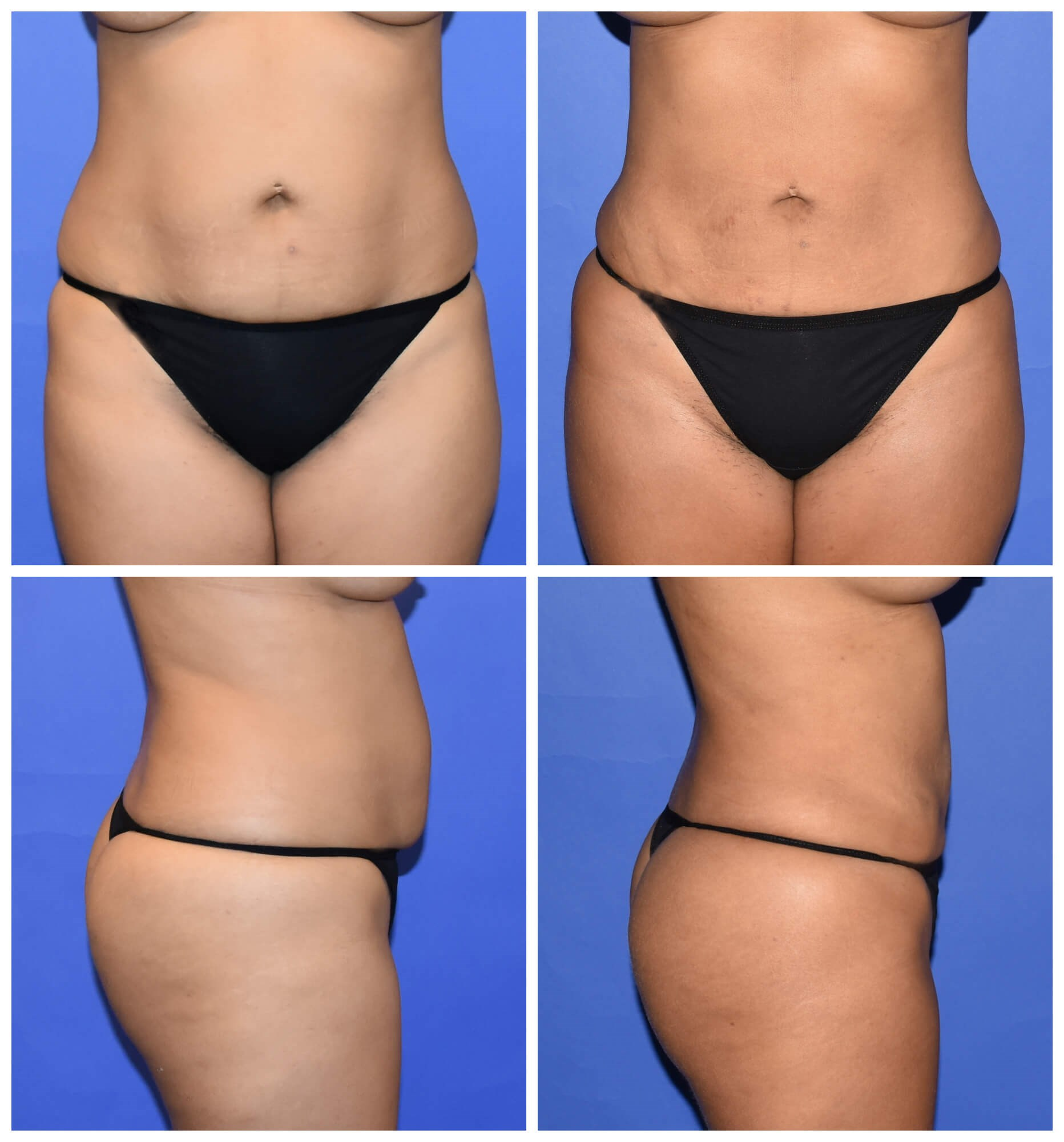Liposuction for Fat Grafting Before