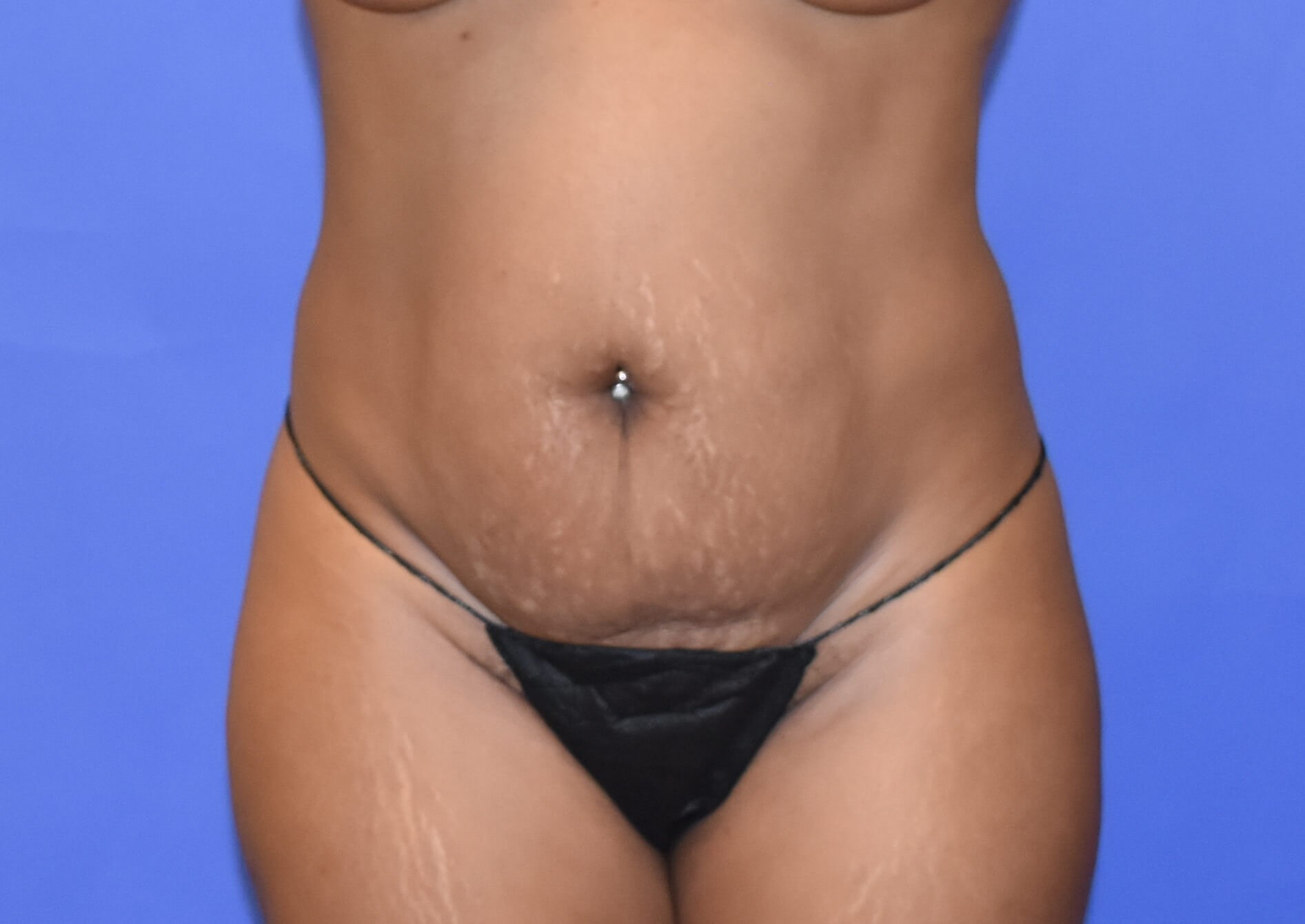 Tummy Tuck | DIEP flap Houston Before