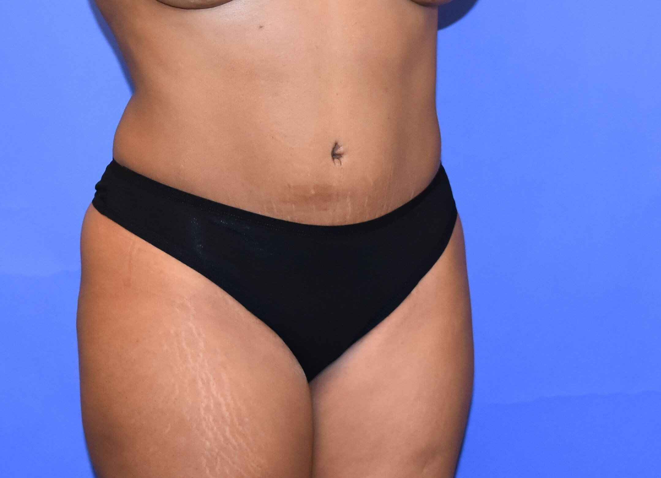 Tummy Tuck | DIEP flap Houston After
