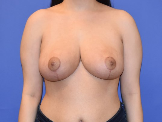 Breast Reduction - Houston, TX After