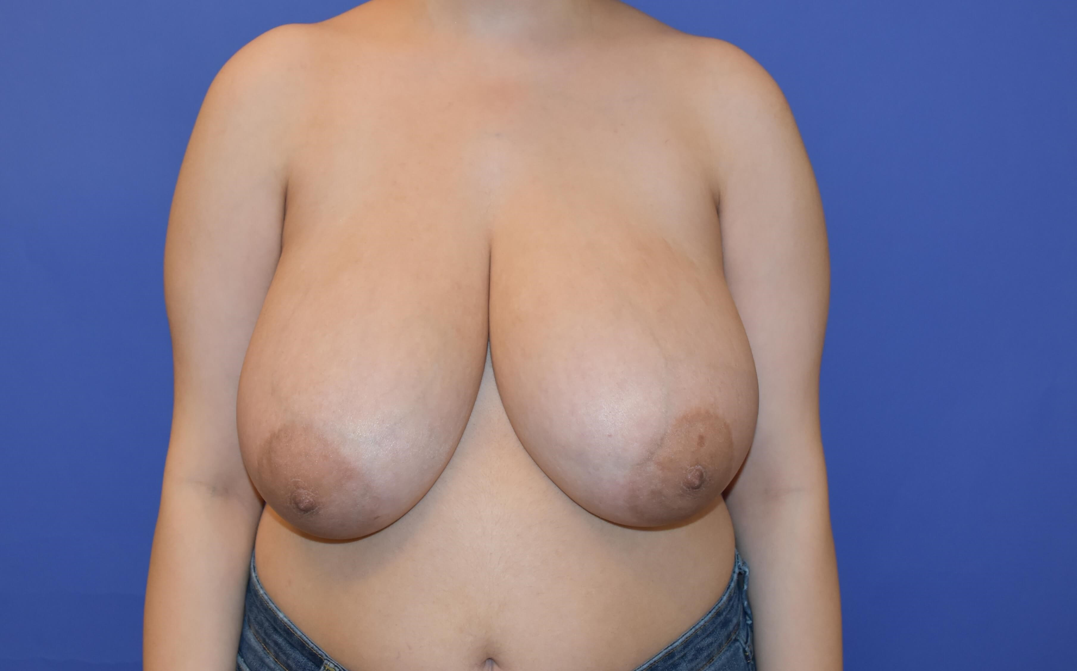 Breast Reduction - Houston, TX Before