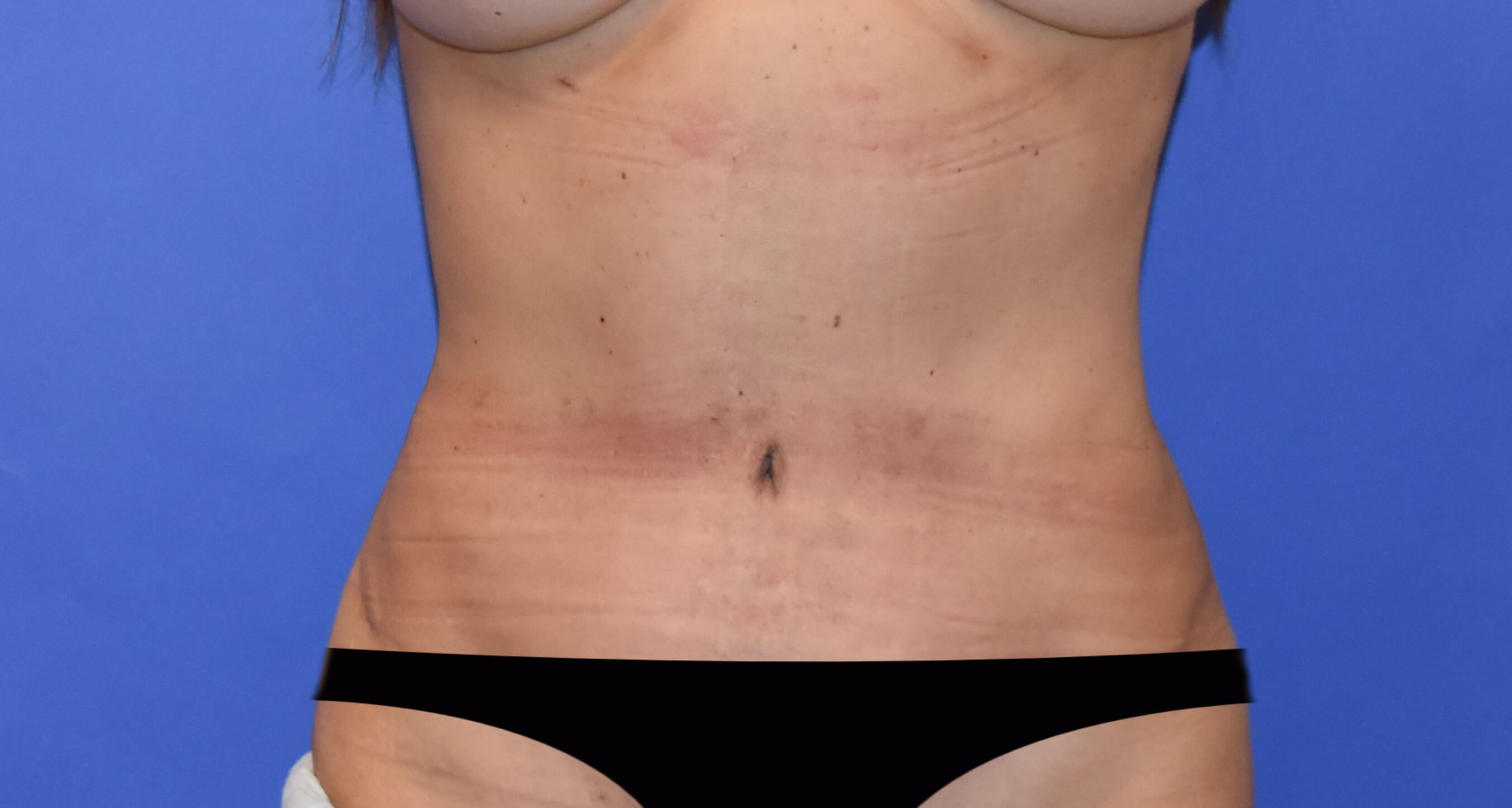 Tummy Tuck - Katy, TX After