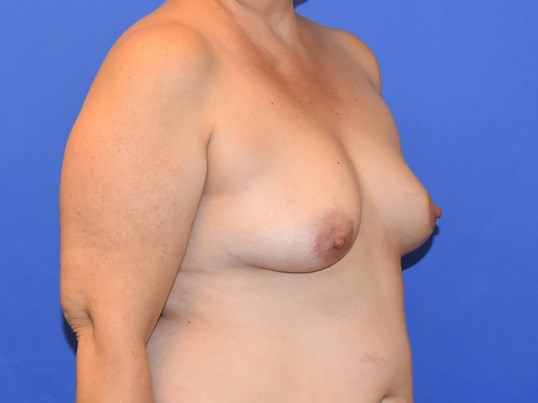 Houston Breast Augmentation Before