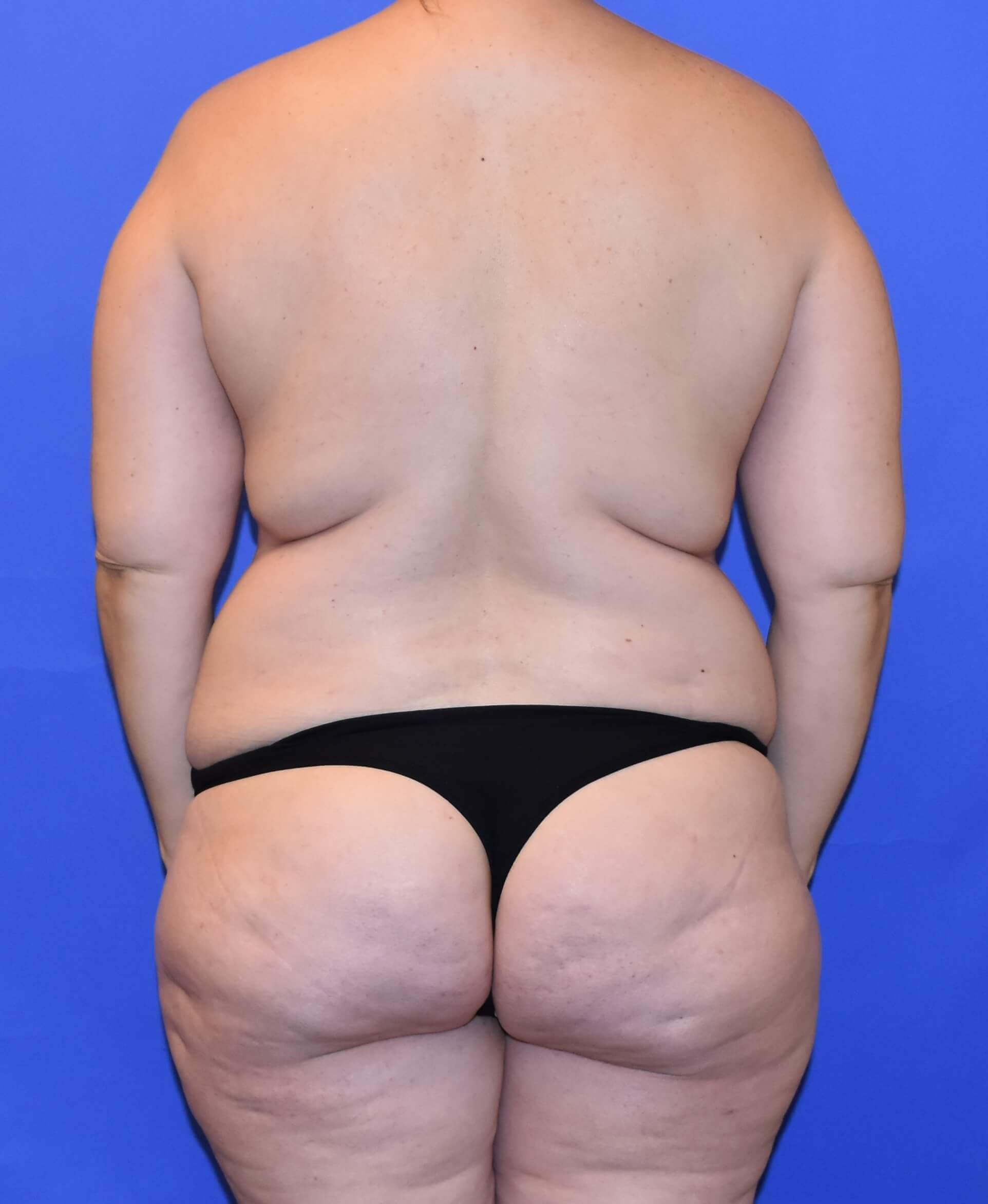 Liposuction Houston Before