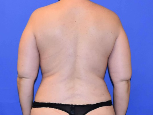 Liposuction Houston After