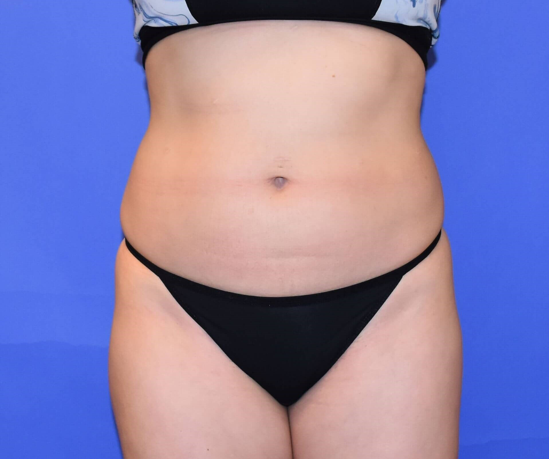 Liposuction Houston, TX Before