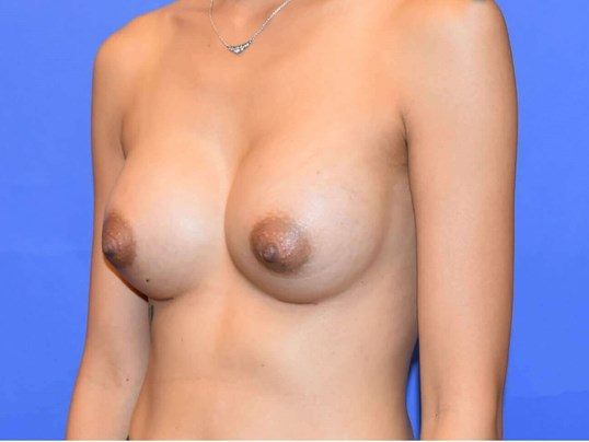 Breast Augmentation Houston 5 months After