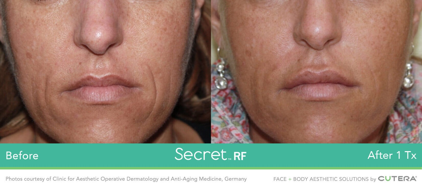 Secret RF Microneedling After 1 treatment