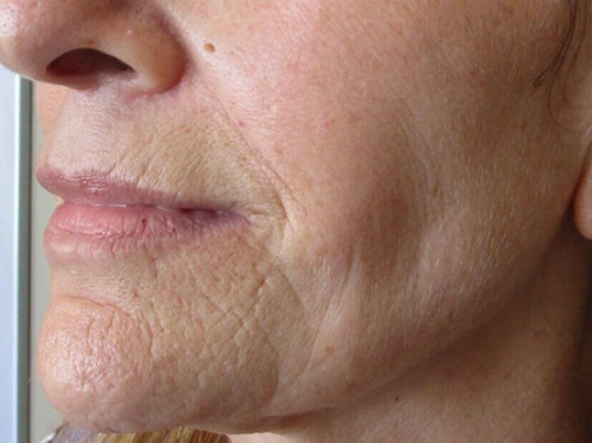 Secret RF Microneedling Before