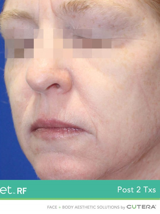 Secret RF Microneedling After 2 treatments