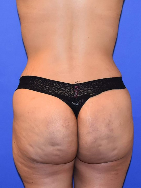 Fat Transfer to Hips & Buttock After
