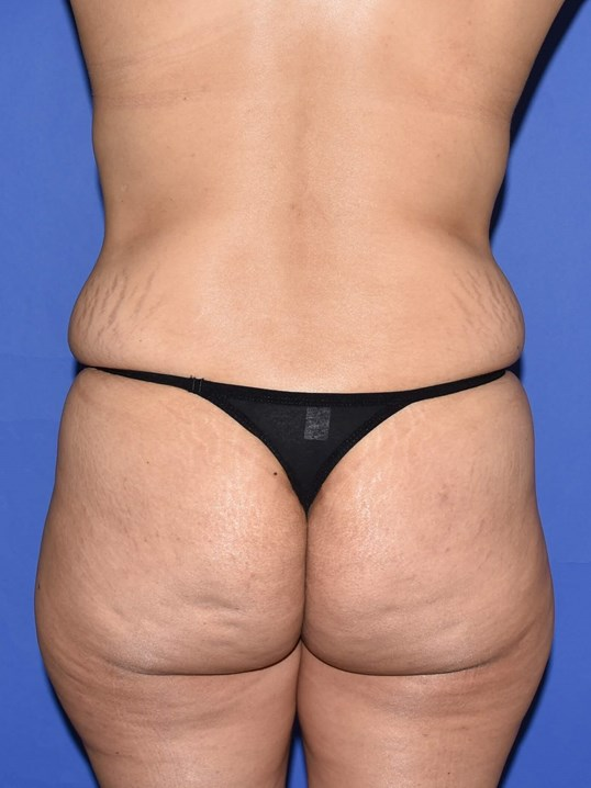 Fat Transfer to Hips & Buttock Before