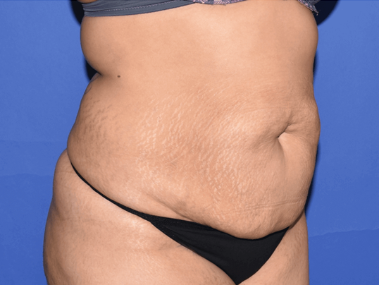 Houston Tummy Tuck Before