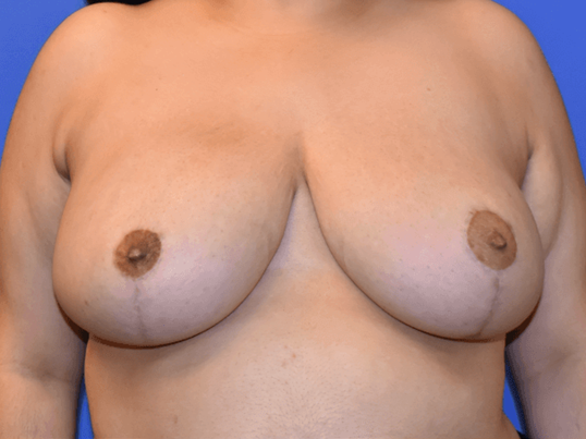 Houston Breast Reduction After 1 year