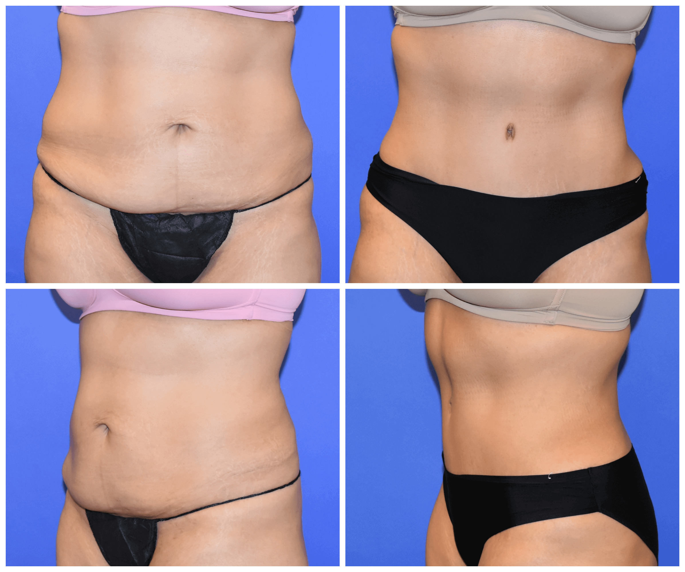 Tummy Tuck Houston, TX Before