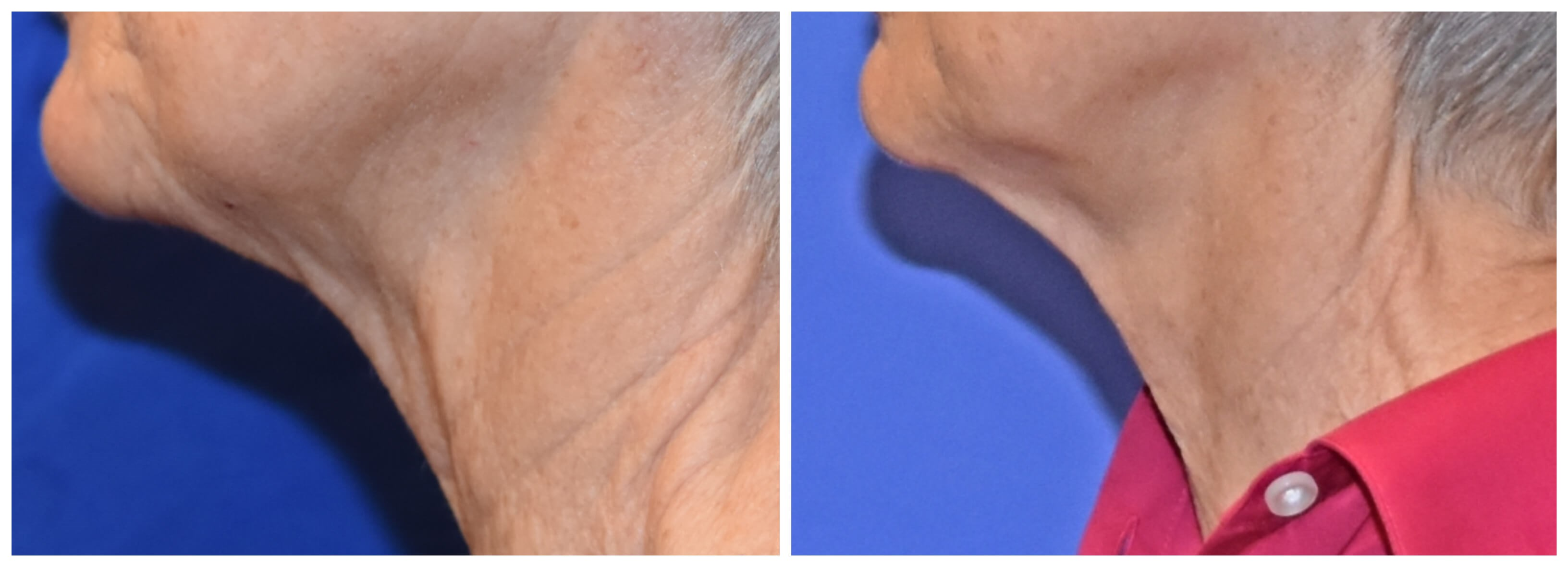 Secret RF Micro-needling Before