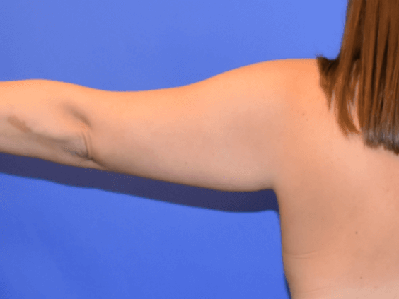 Arm Liposuction Katy Before