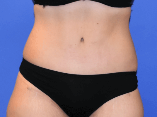 Tummy Tuck Houston After
