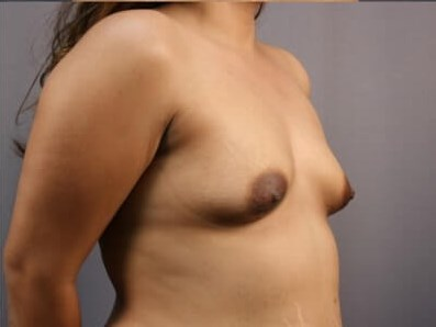 Mommy Makeover - Breasts Before