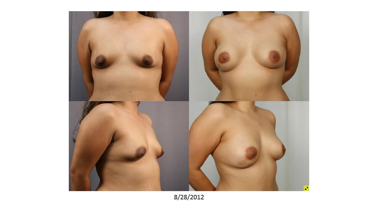 Mommy Makeover - Breasts After