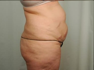 Side View Tummy Tuck Before