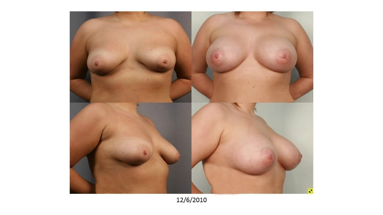 Breast Augmentation - Front After - 2 months