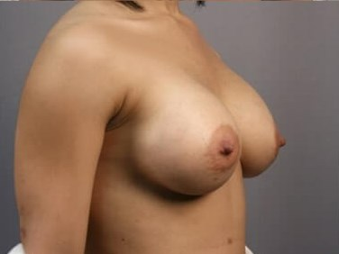 Breast Augmentation - Side After
