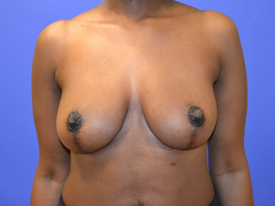 Breast Reduction - Front View After