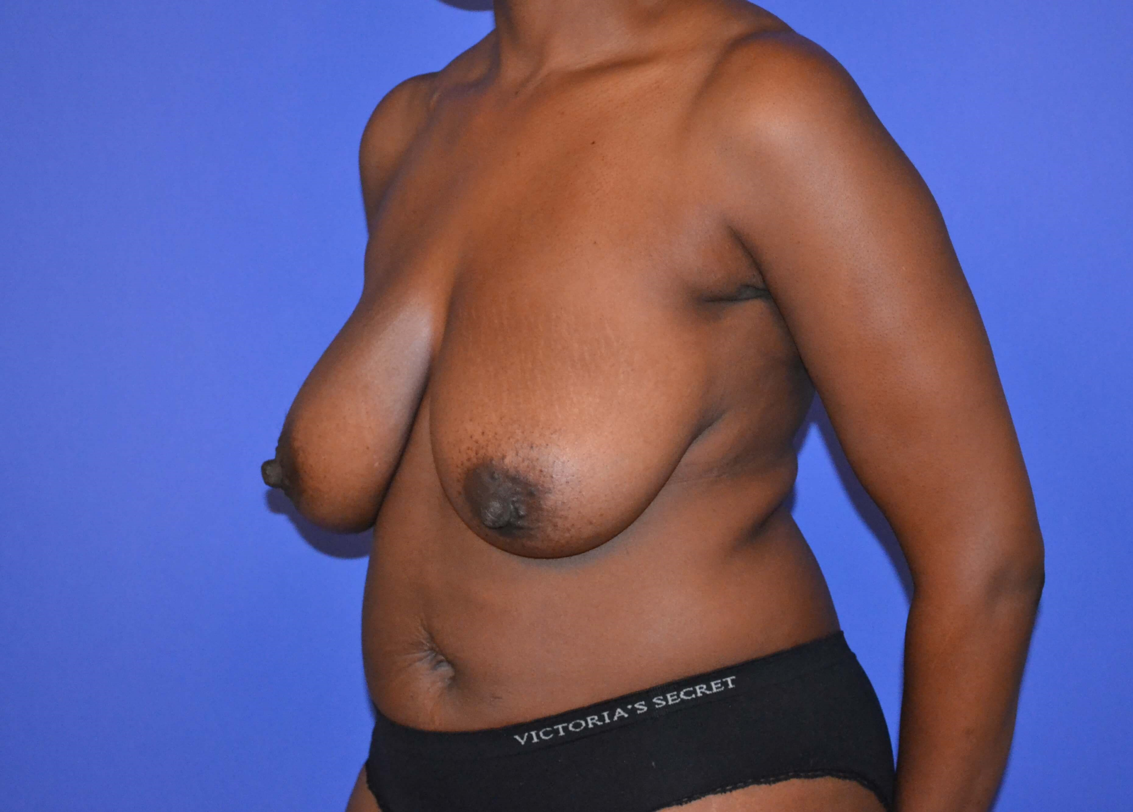 Breast Reduction - Side View Before