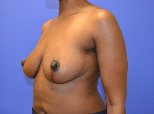 Breast Reduction - Side View After