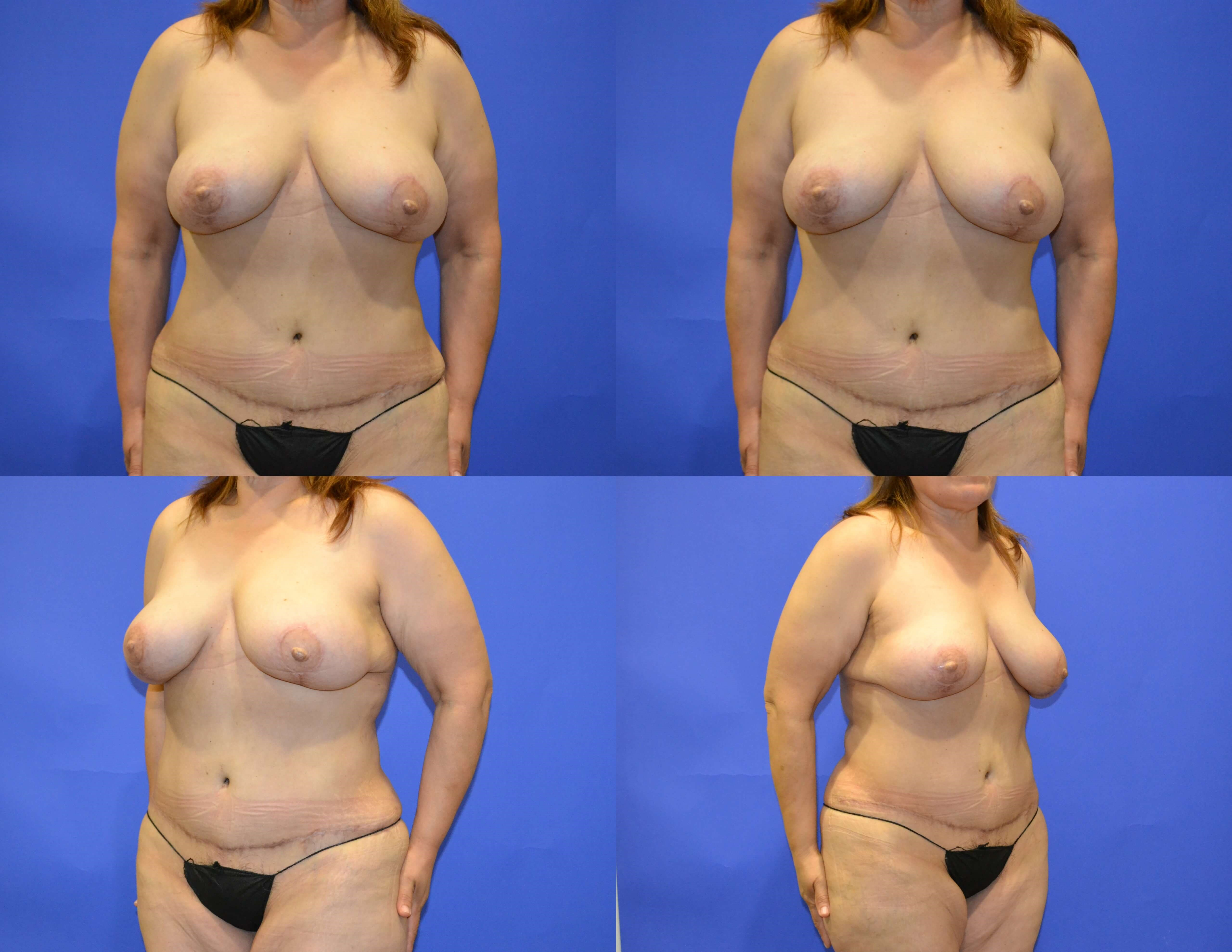 Breast Reconstruction - Front After - Final Stage