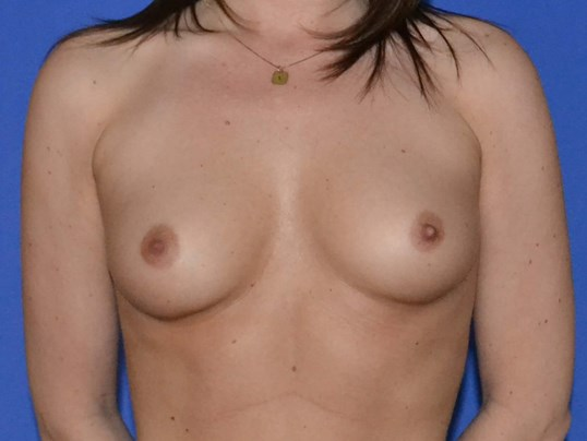 Breast Enlargement - Front Before