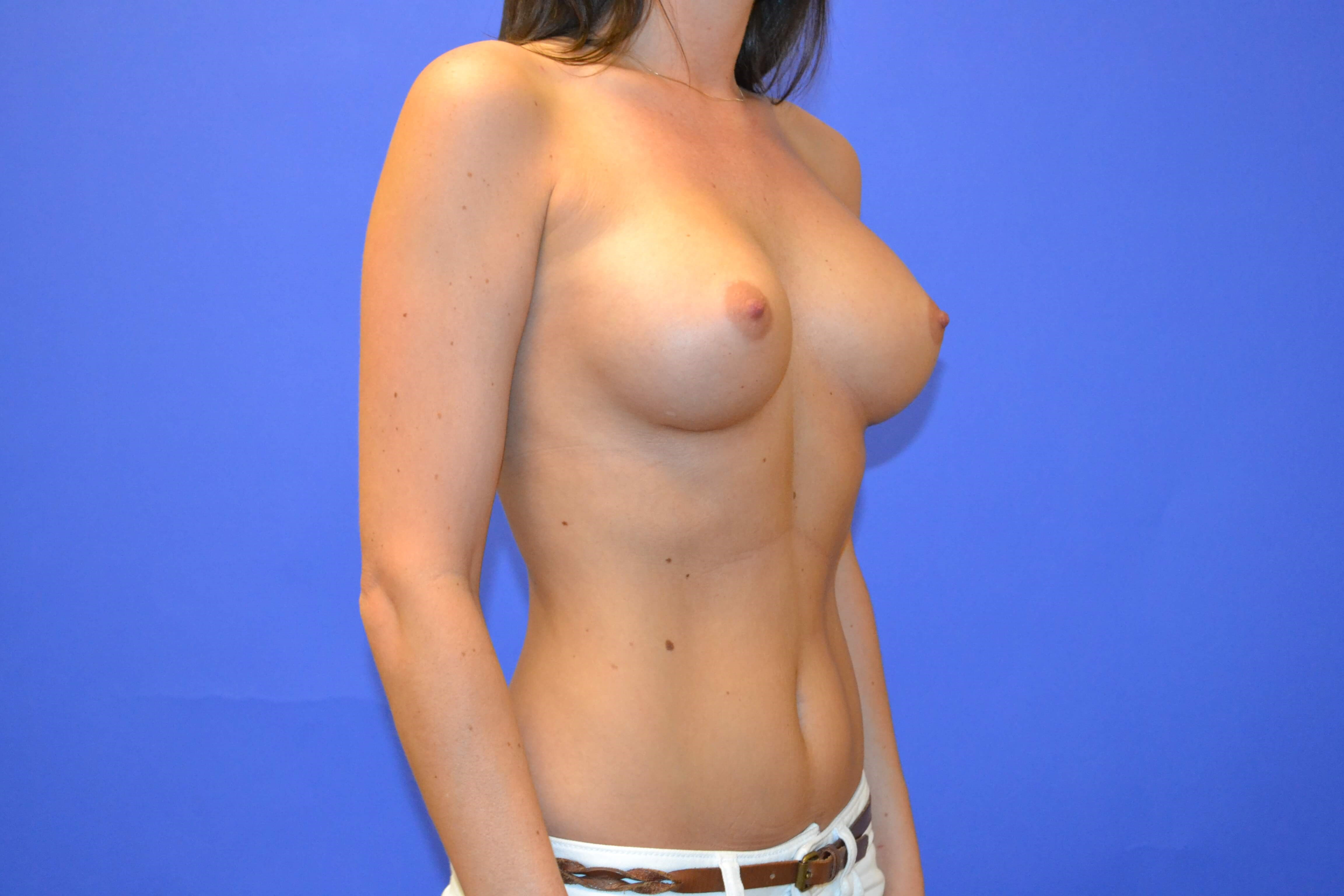 Breast Enlargement - Right After