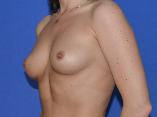 Breast Enlargement - Left Before