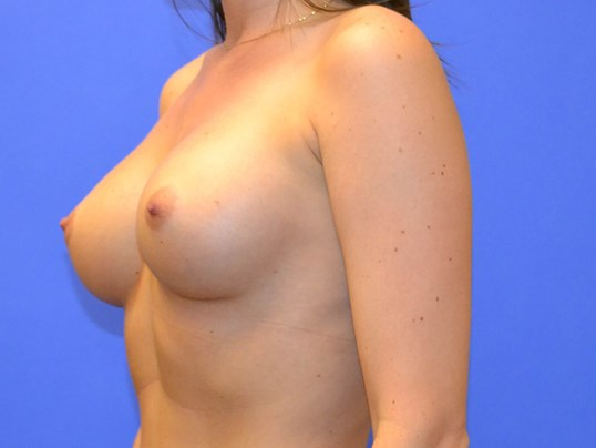 Breast Enlargement - Left After