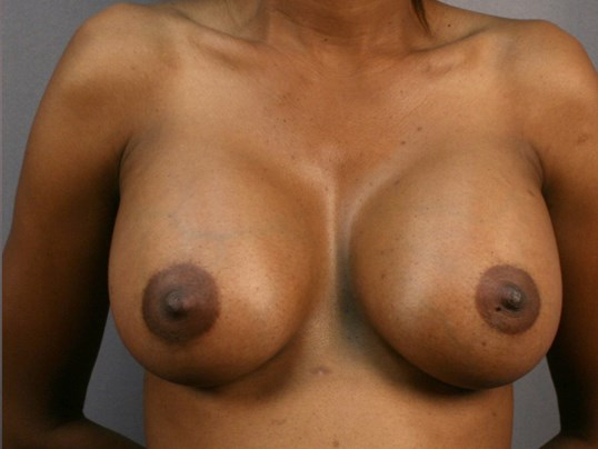 Breast Enlargement - Front After