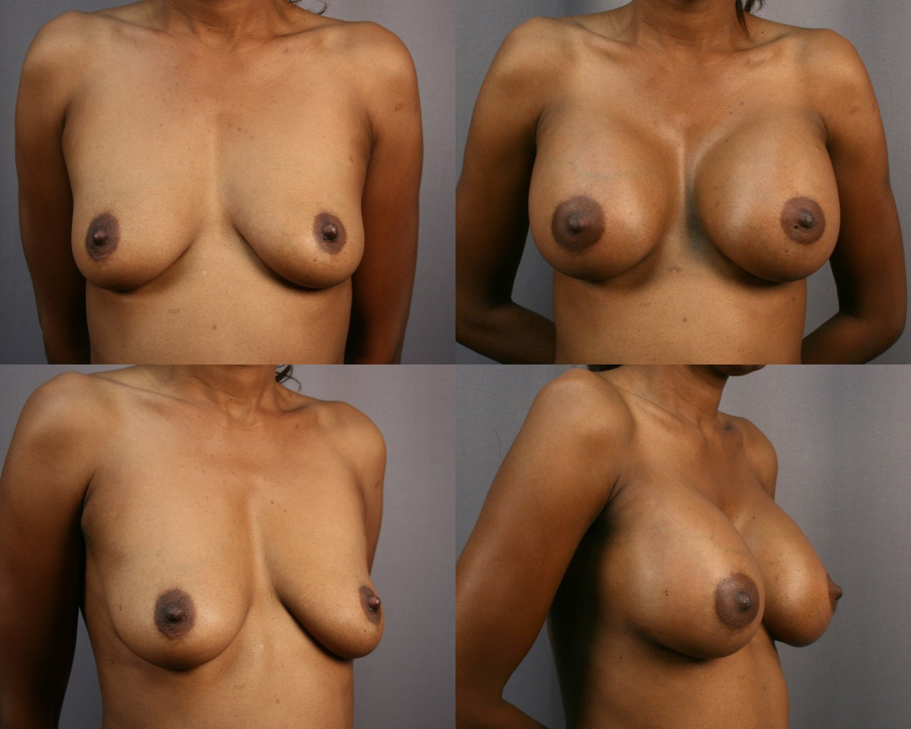 Breast Enlargement - Side Before