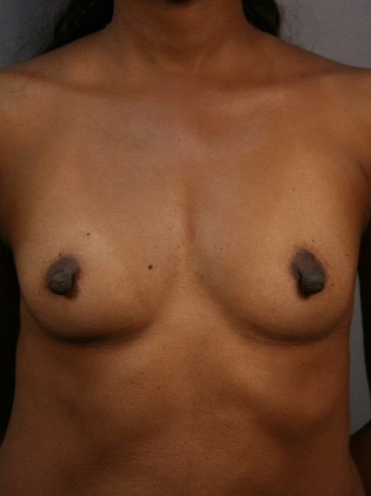 Breast Augmentation: Front Before