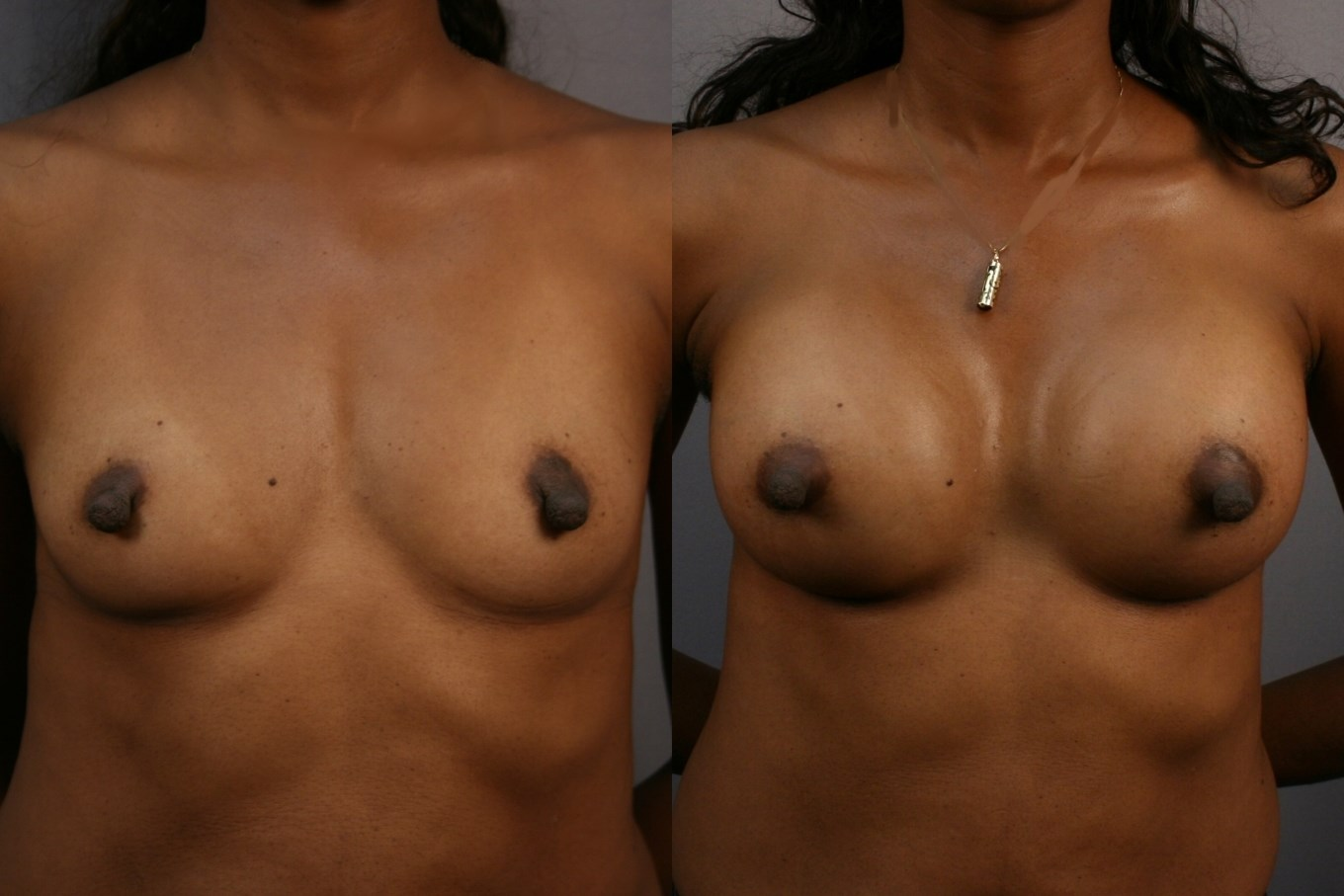 Breast Augmentation: Front After
