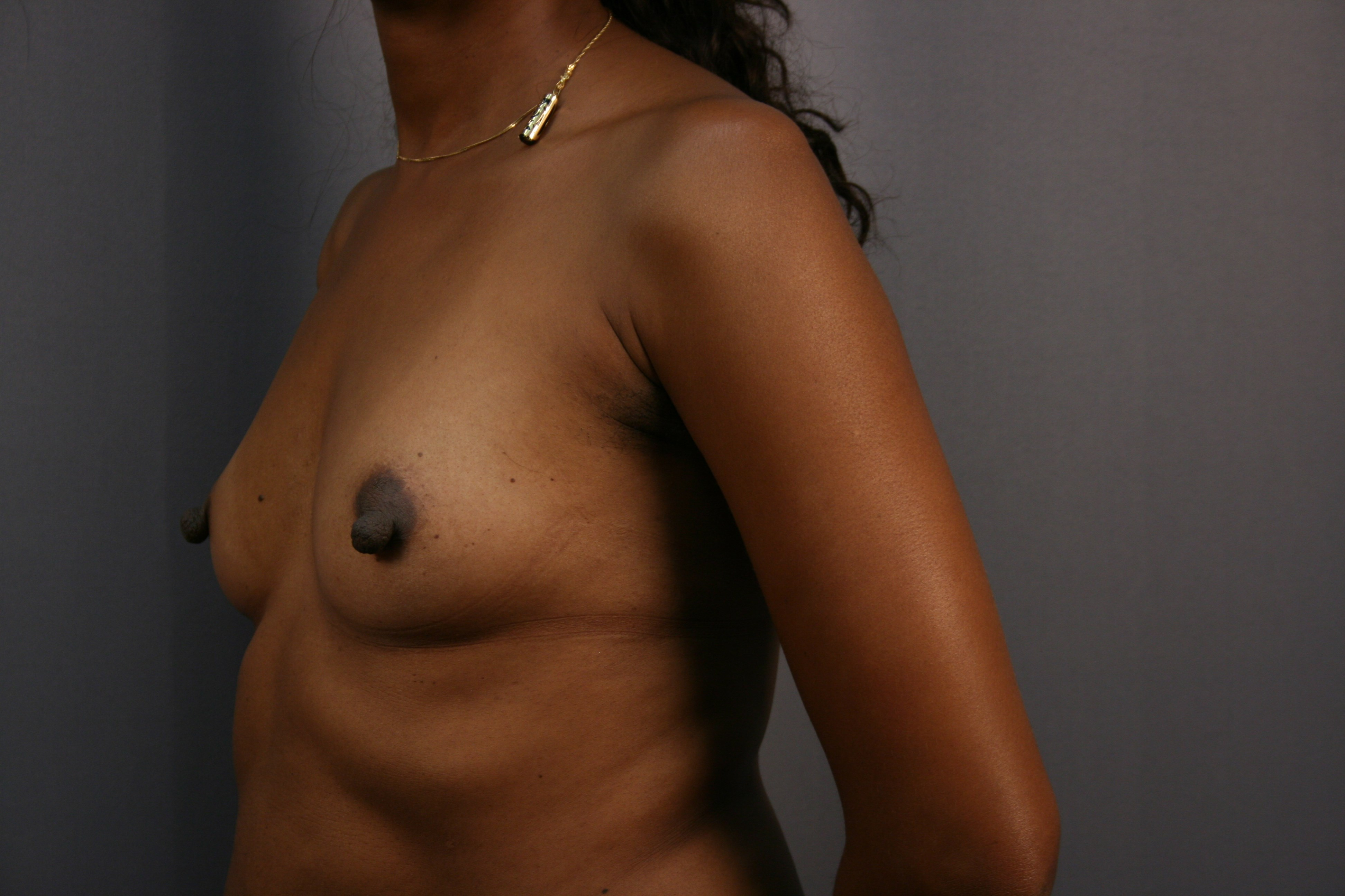 Breast Augmentation: Left Before