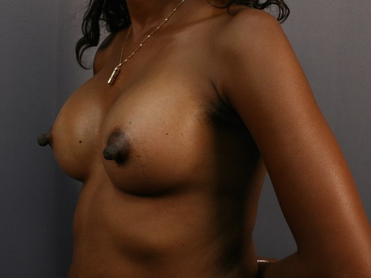 Breast Augmentation: Left After