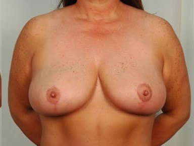 Breast Reduction - Front After - 4 months